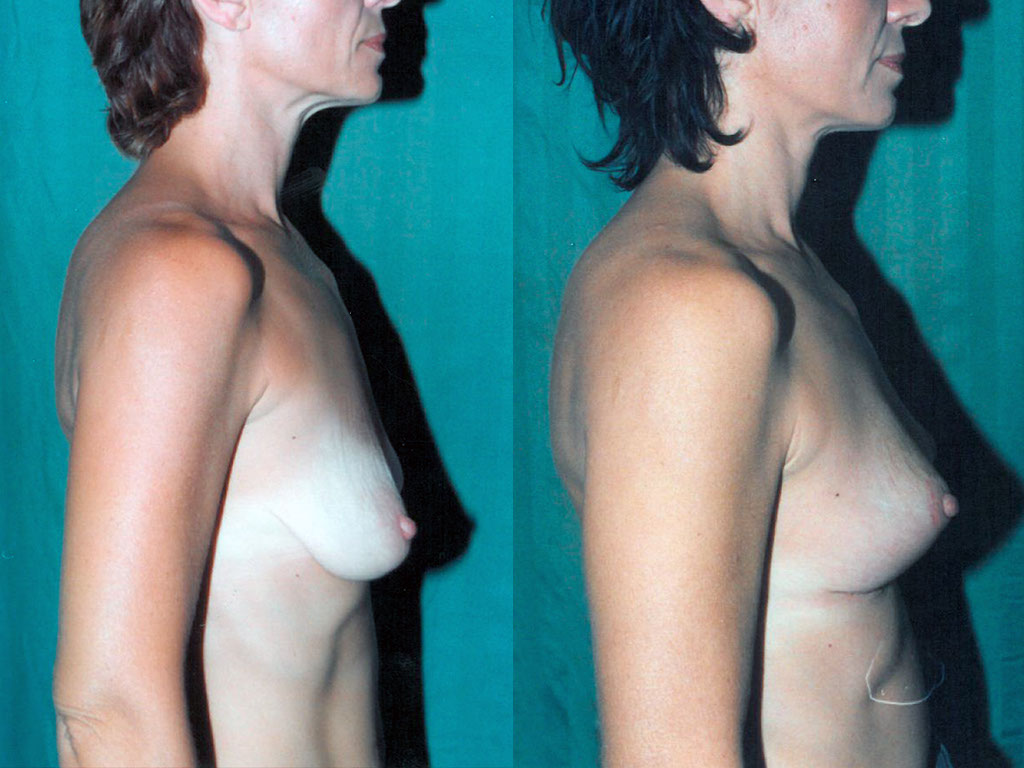 Leruzione di acne su un dorso la persona come liberarsi
